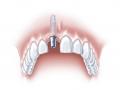 s tooth xive b1.jpg