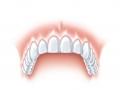 s tooth ankylos d.jpg